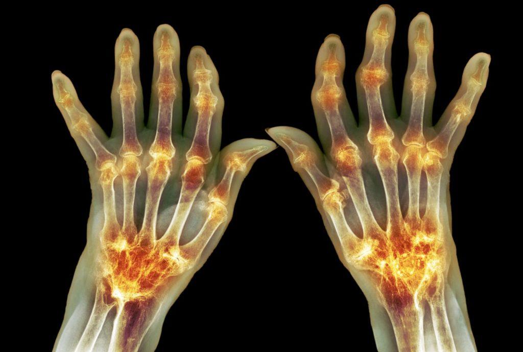 Пальцы, руки, рентген