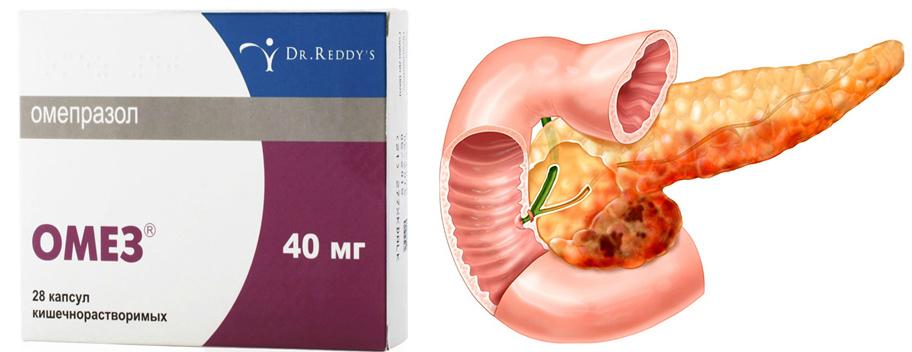 Омез при лечении панкреатита