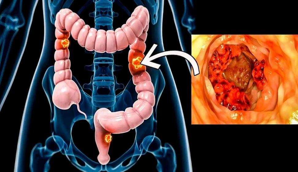 Брокколи от развития рака кишечника