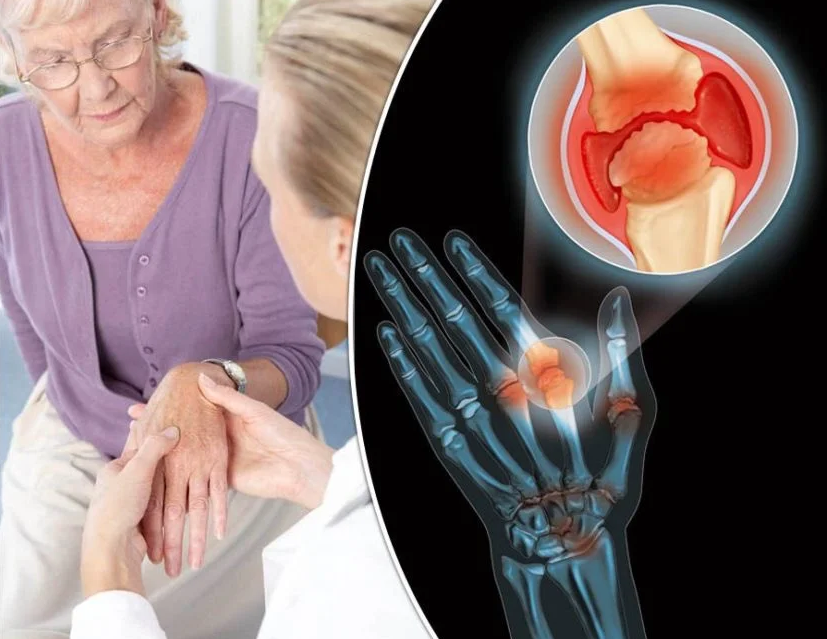 Больные остеоартритом