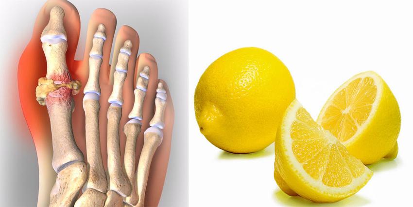 Лимон при подагре