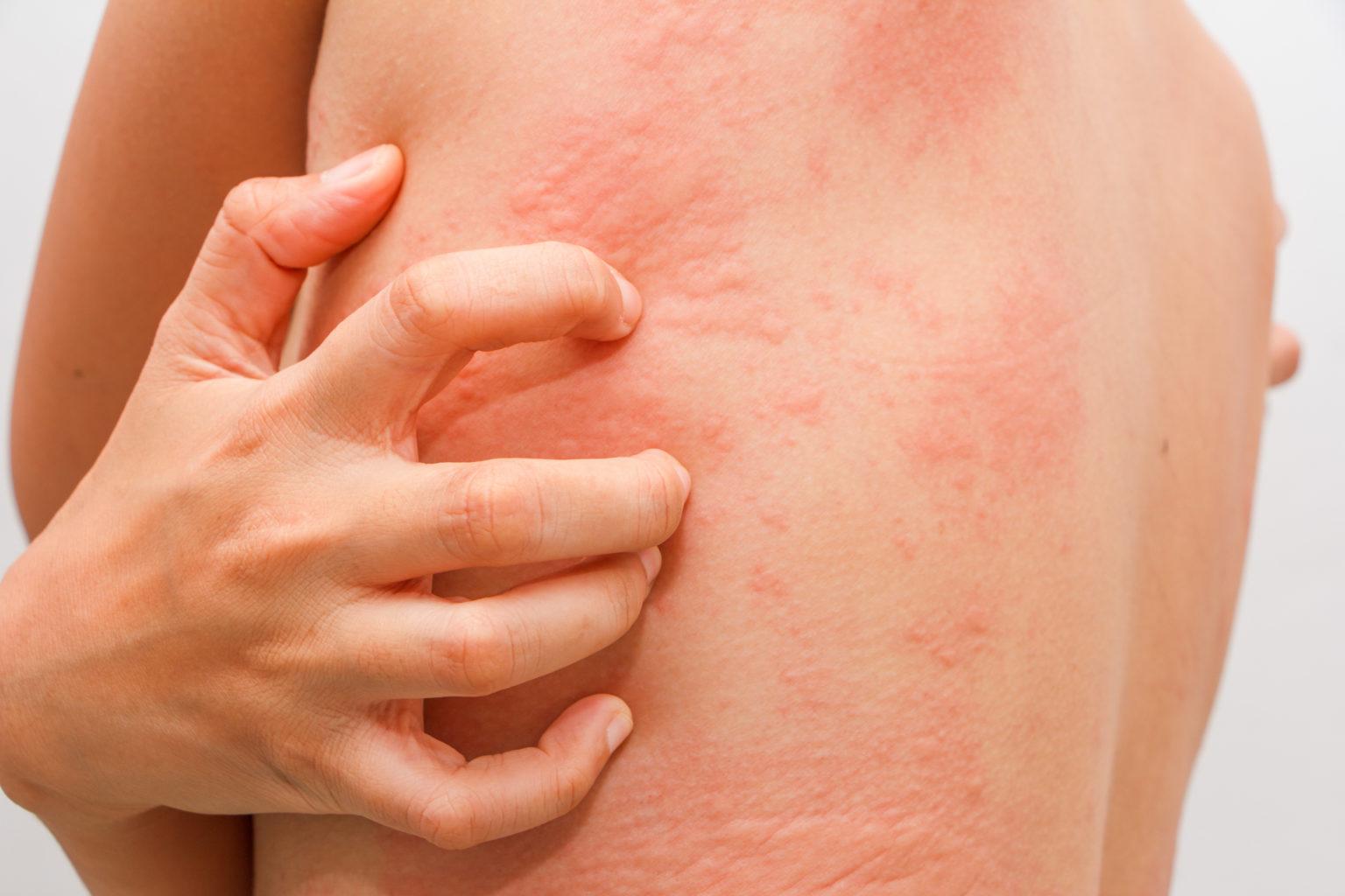 Внезапные аллергические реакции