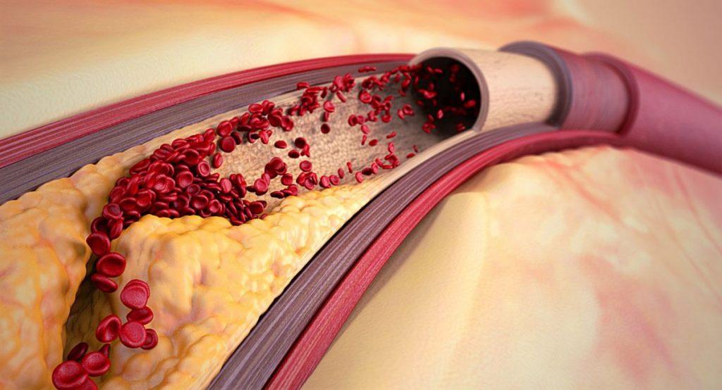 Избыток нерасщепленного холестерина