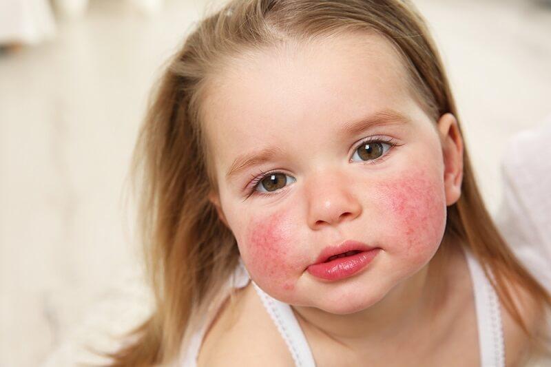 Детис атопическим дерматитом