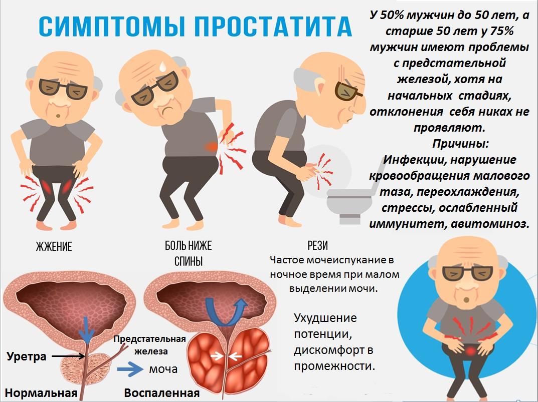 Простатит симптомы