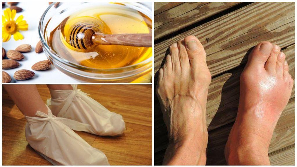 Лечение подагры медом