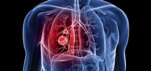 грудная клетка, легкие, опухоль