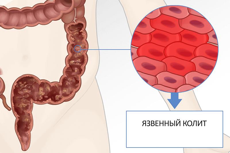 Отвар ромашки для желудка и кишечника