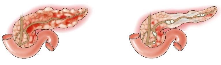Отвар шиповника при панкреатите поджелудочной железы