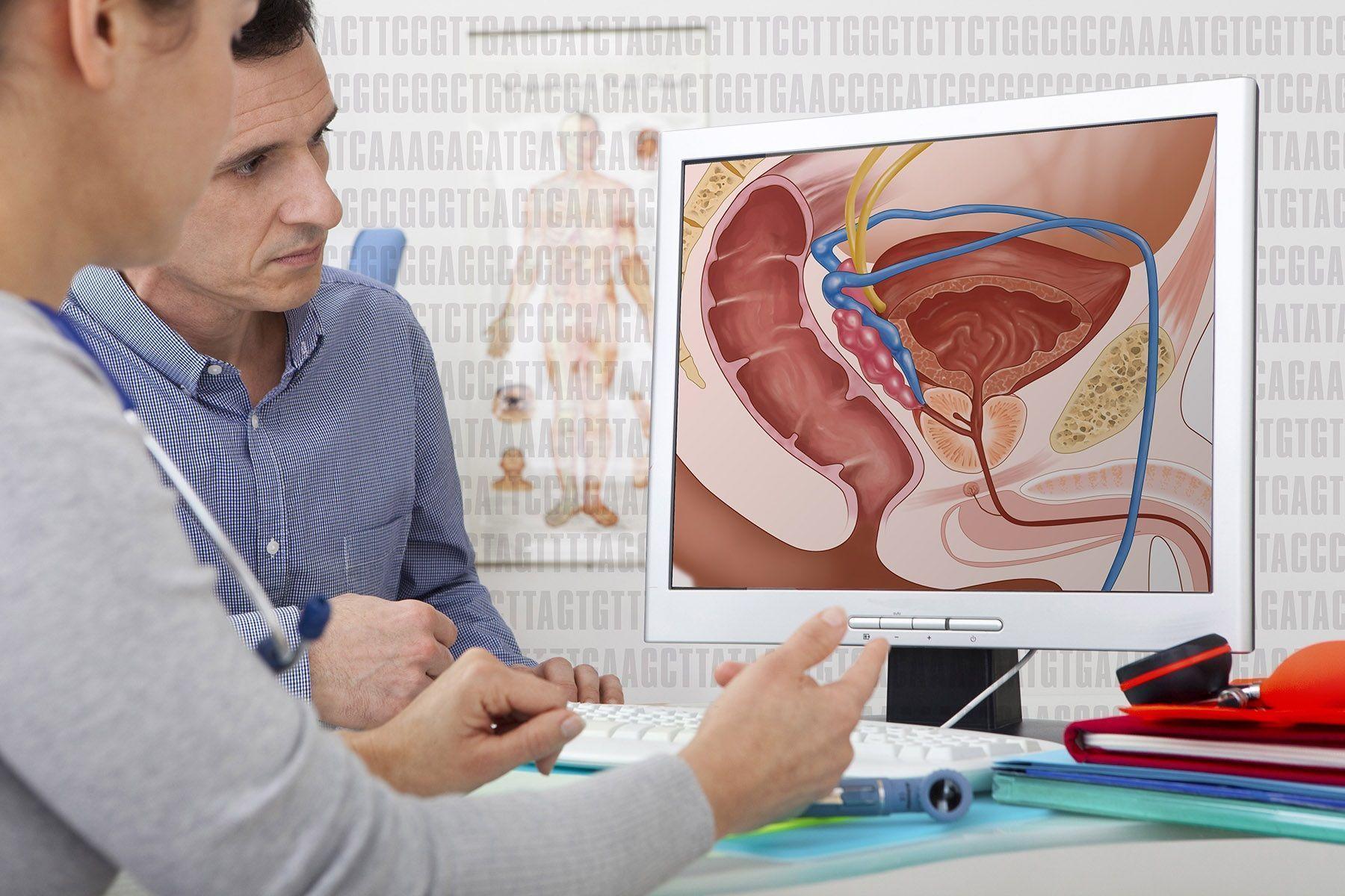 Терапия простатита