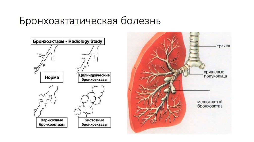 Бронхоэктическая болезнь
