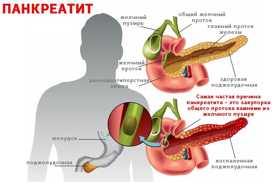 Воспаление желчного пузыря и поджелудочной железы