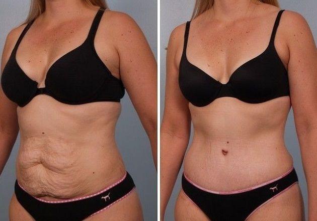 до и после кожа