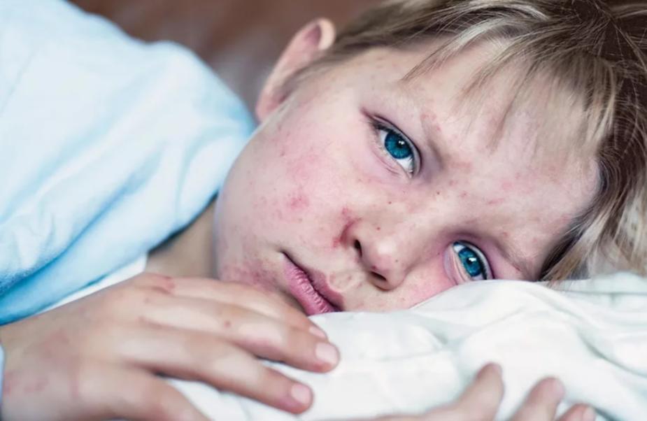 От коронавируса не избежать осложнений