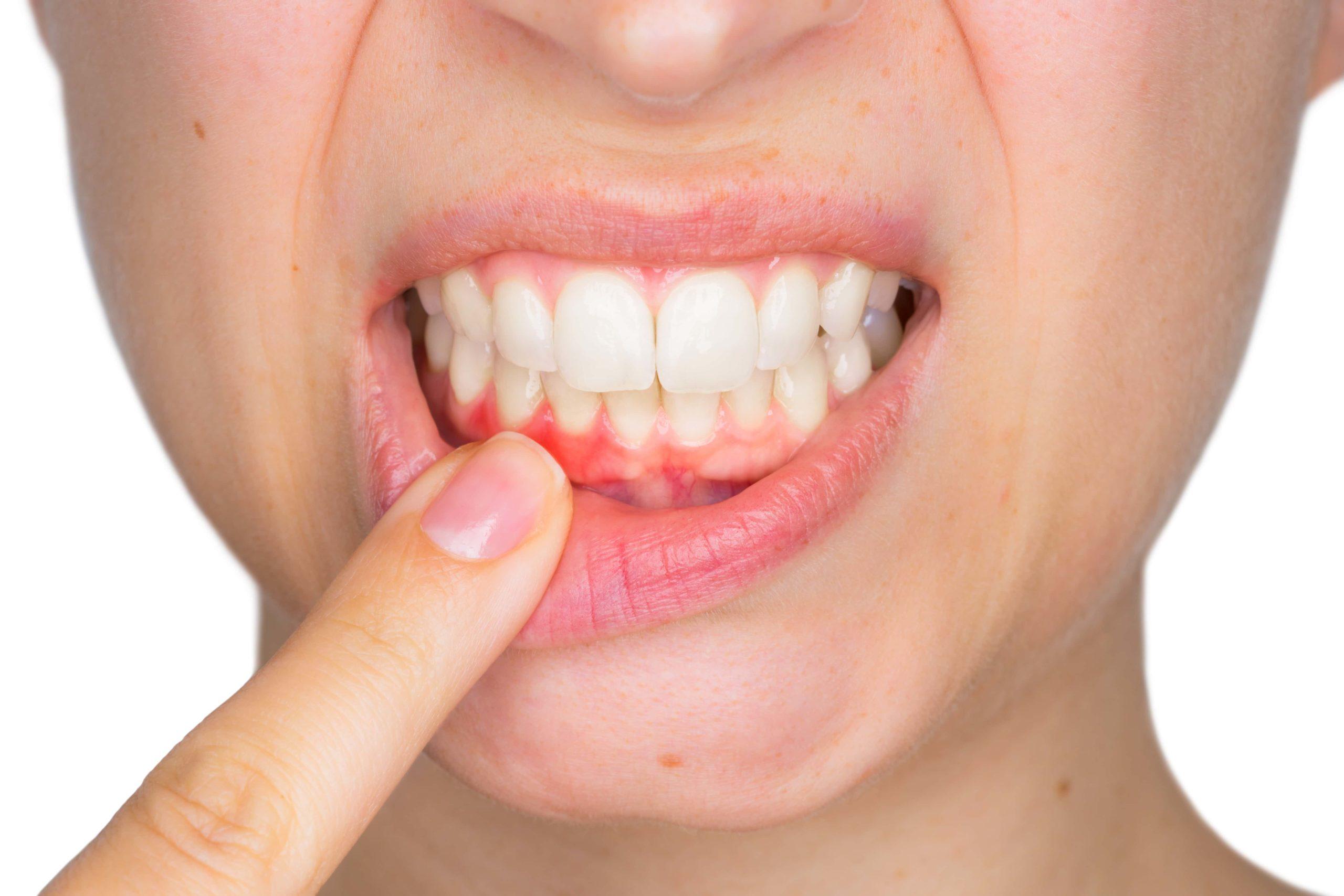 Кора дуба укрепляет зубы